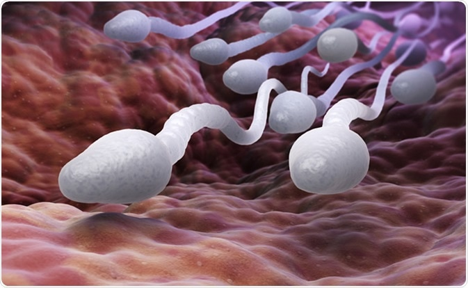 What You Should Know About Sperm DNA Fragmentation and Infertility